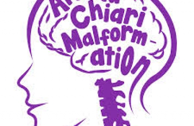 Chiari (kee-AR-ee) malformation is a serious neurological disorder