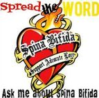Spina Bifida is the only birth defect VA recognizes as being linked to exposure to Agent Orange in the children of male Vietnam veterans.