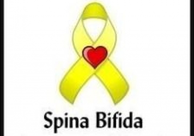 Meningocele (Spina Bifida)