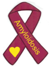 AL amyloidosis is a rare disease caused when amyloid proteins are abnormally deposited in tissues or organs.